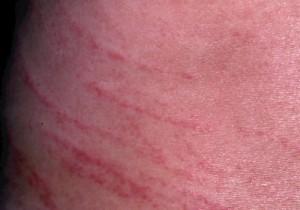 アルコールアレルギー湿疹を起こさないための5つ …
