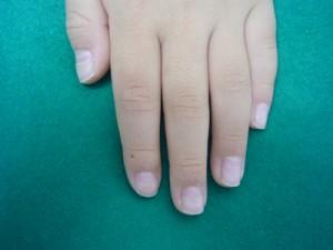 爪 剥がれる 手足 口 病