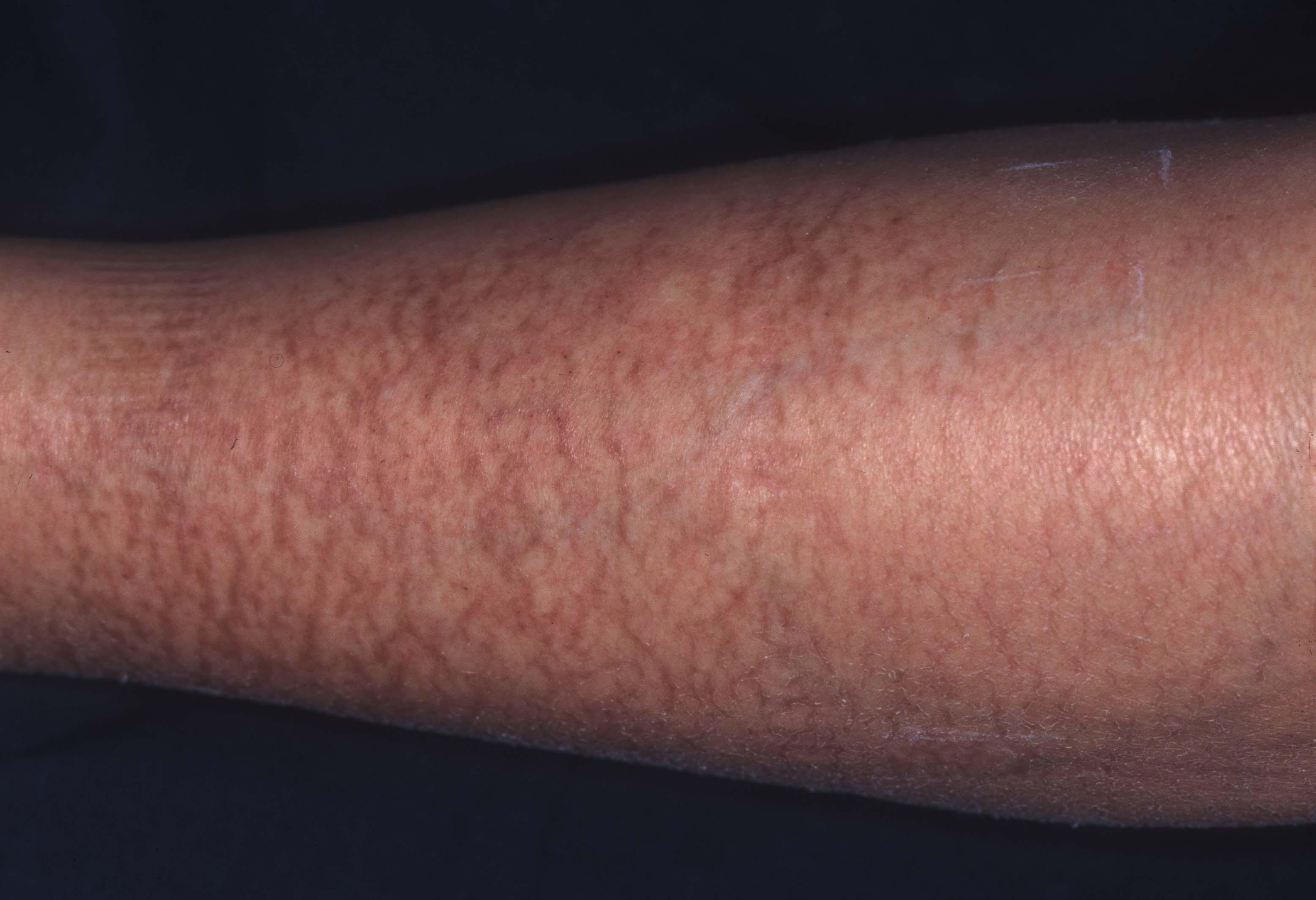 手・指皮膚炎(手湿疹/主婦湿疹)(てゆびひふえ …
